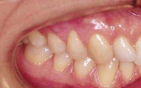 Periodontal Gallery Case 5