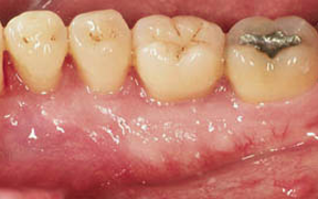 Periodontal Gallery Case 7