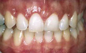 Periodontal Gallery Case 1