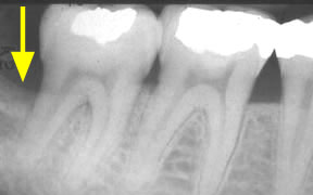 Periodontal Gallery Case 2