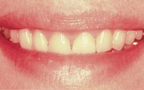 Periodontal Gallery Case 3