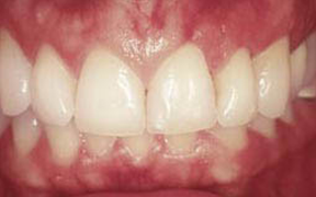 Periodontal Gallery Case 4
